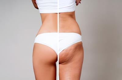 Cellulite: come conoscere questo inestetismo della pelle