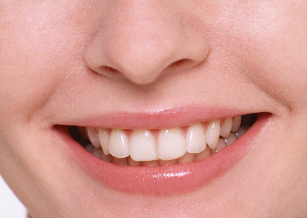 Snap- on Smile: l'implantologia alternativa